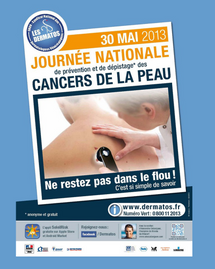 journée nationale depistage cancer peau 2013