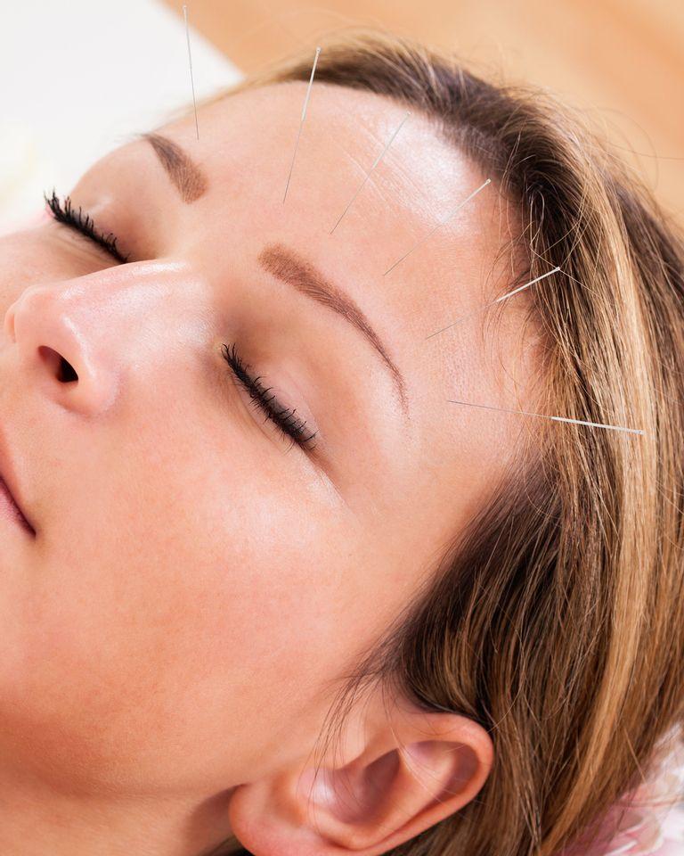 acupuncture visage esthétique