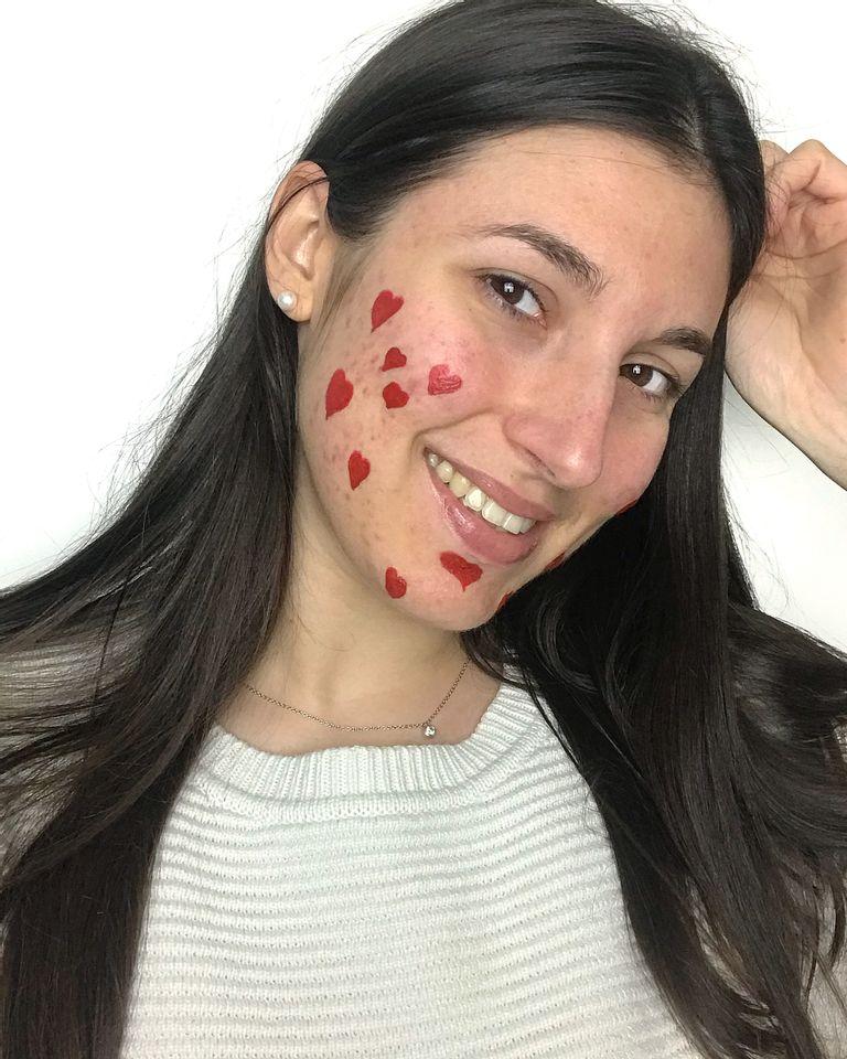 Anne Latuille, acné positive