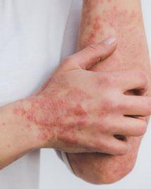 traitements naturels psoriasis