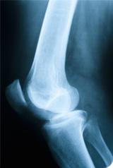 Ostéoporose et vitamine D